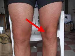 Douleur interieur gauche 28 images schema prothese for Douleur genou interieur